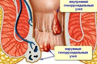 Симптомы аэрофагии и лечение